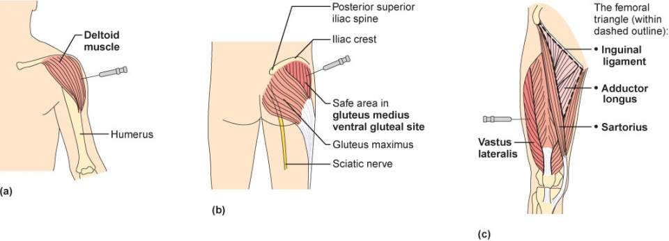 Intramuscular Injection Sites.jpg